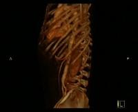 * Rappresentare il corpo, arte e anatomia da Leonardo all'Illuminismo, Bologna Palazzo Poggi, 10 dicembre 2004 aprile 2005 * Percorso storico dell'anatomia dalle origini * Teatri anatomici e museo anatomico Archiginnasio di Bologna *