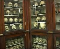 * Museo Universitario di Storia naturale e della Strumentazione scientifica di Modena* Particolarità delle collezioni del Museo Anatomico*